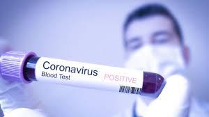 Tim GTPP Covid 19 melakukan rapid test kepada 57 orang tenaga kesehatan